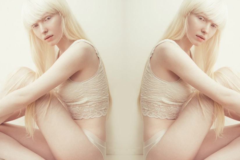 albinoska
